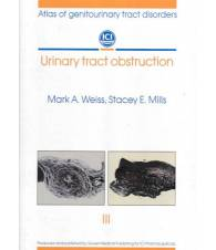 Urinary tract obstruction